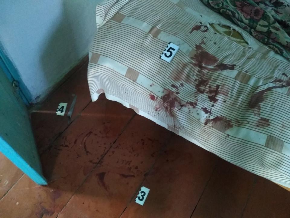 Брат вдарив ножем коханого чоловіка сестри, в цей час він спав (Фото), фото-1