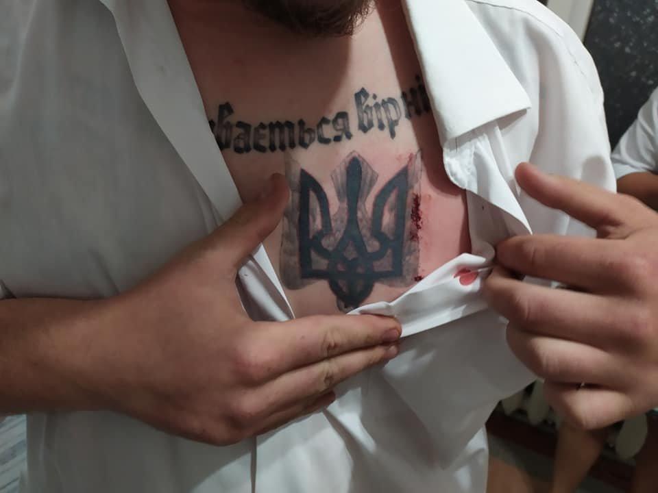 У Хмельницькій області кандидата у нардепи вдарили ножем у груди (фото, відео), фото-2