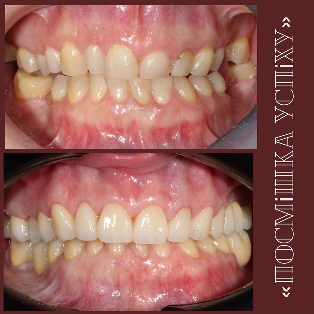 Голлівудська усмішка за допомогою вінірів на зуби в Хмельницькому, фото-1