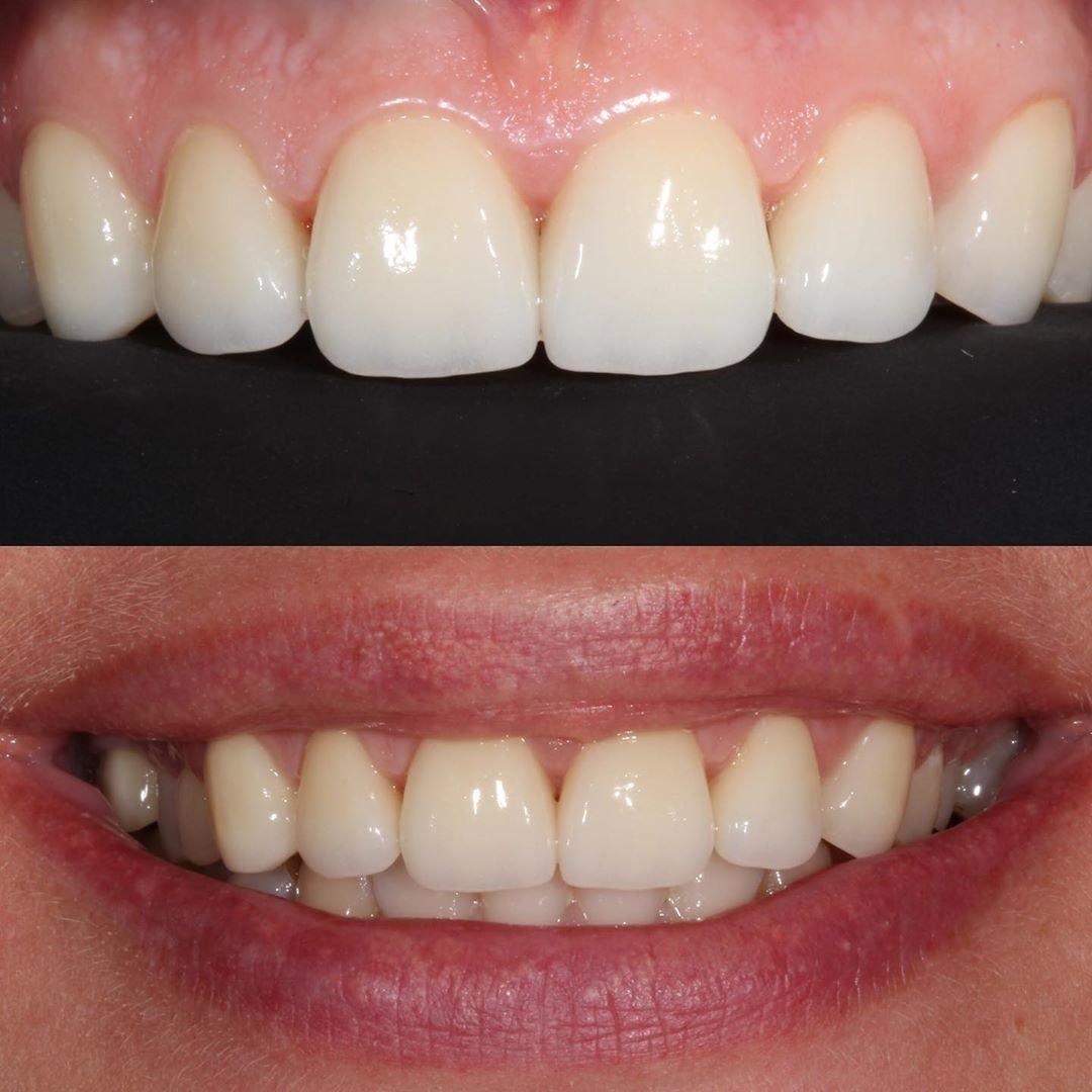 Голлівудська усмішка за допомогою вінірів на зуби в Хмельницькому, фото-2