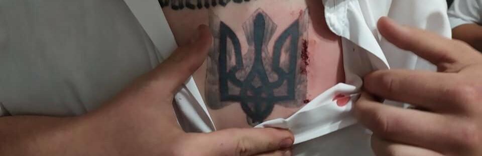 У Хмельницькій області кандидата у нардепи вдарили ножем у груди